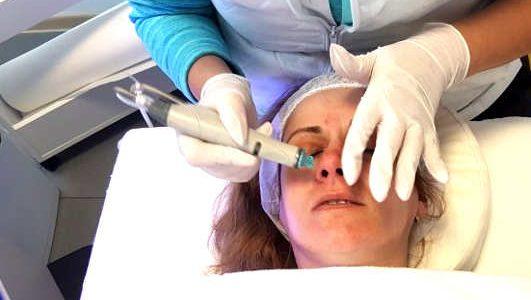 Епилация на лицето